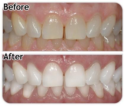отбеливание зубов zoom white speed